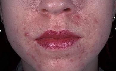 Пероральный дерматит на коже лица - фото