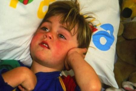 Лечение отита у детей в домашних условиях