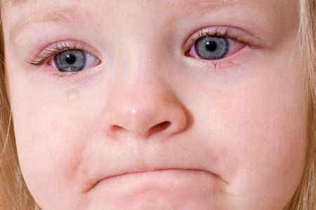 Покраснение белка глаза у ребенка фото