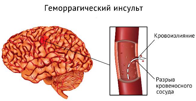 Геморрагический инсульт на фото