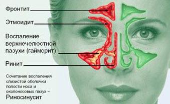Хронический ринит - насморк