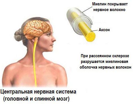 Что такое склероз?