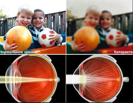 Фото при катаракте глаз