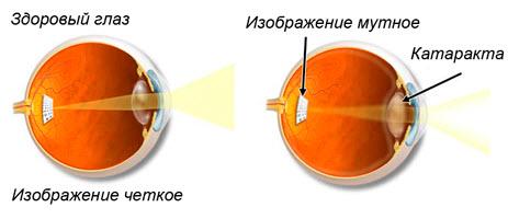 Симптоматика катаракты