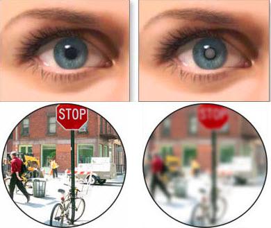 Слепота при катаракте