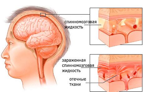 Что происходит при менингите?