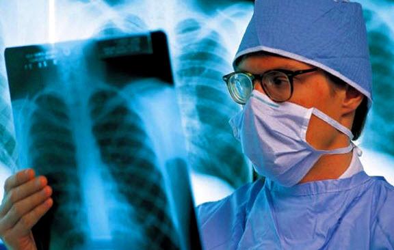 Туберкулез легких