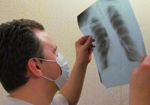 Способы туберкулеза