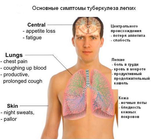 Симптоматика туберкулеза