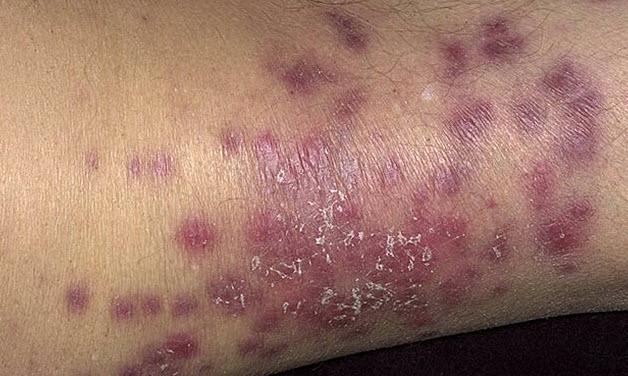Внешние признаки васкулита